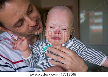 Cute baby boy with Down syndrome crying on father hands