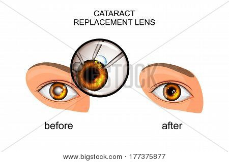 vector illustration of a replacement of the crystalline lens in cataract