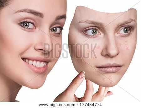 Young woman puts away mask with bad acne skin over white background