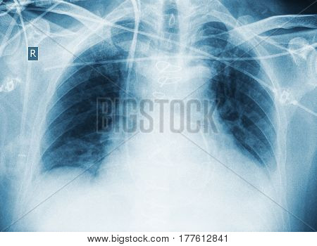 X-ray image of critically ill patient. Professional background