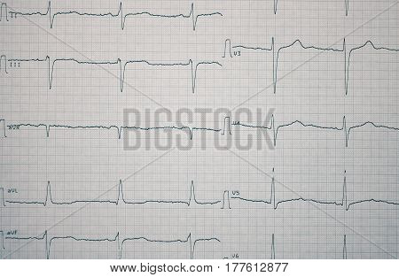 ECG record on the paper as a medical background.