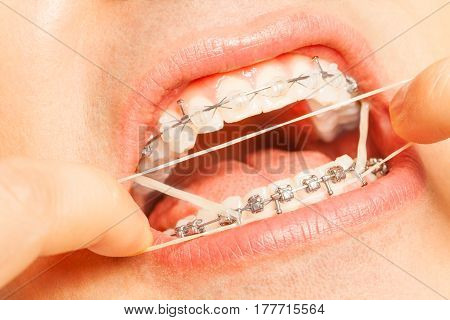 Putting on orthodontic rubber latex strings man with fingers stretch ring to put on braces hooks