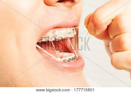 Man put on latex ring strings for correcting shape of jaw bite of teeth on braces side view helping with fingers