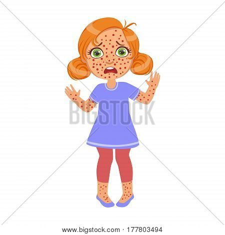 Girl With Red Pimples Rush, Sick Kid Feeling Unwell Because Of The Sickness, Part Of Children And Health Problems Series Of Illustrations. Young Teenager Ill Cute Cartoon Character With Illness Symptoms.
