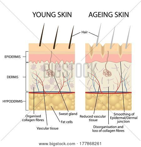 Young healthy skin and older skin comparison, skin layers and wrinkles diagram.