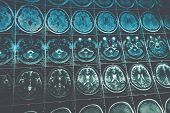 MRI or magnetic resonance image of head and brain scan, toned image poster