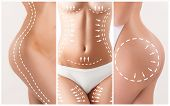 The cellulite removal plan. White markings on young woman body preparing for plastic surgery. Concept of slimming, liposuction, strand lifting poster