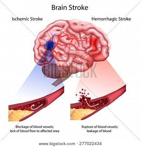 Stroke Types Poster, Banner. Vector Medical Illustration. White Background, Anatomy Image Of Damaged