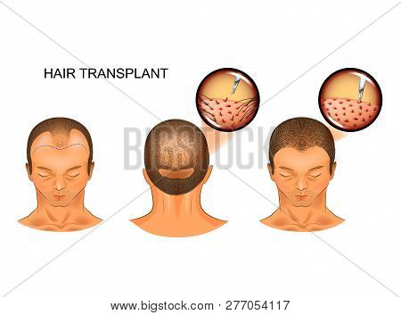 Vector Illustration Of Hair Transplantation Of The Occipital Part Of The Head On The Frontal