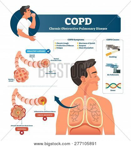 Copd Vector Illustration. Labeled Chronic Obstructive Pulmonary Disease Explanation. Lungs Inflammat
