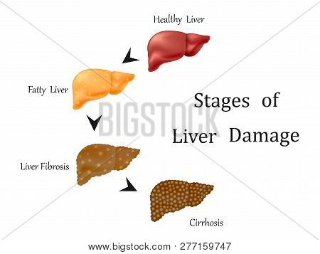 Stages Of Liver Damage, Liver Disease. Healthy, Fatty, Liver Fibrosis And Cirrhosis Isolated On Whit
