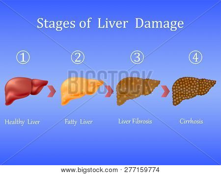 Stages Of Liver Damage, Liver Disease. Healthy, Fatty, Liver Fibrosis And Cirrhosis Isolated On Blue