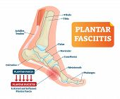 Plantar fasciitis vector illustration. Labeled human feet sport disorder diagram. Educational medical scheme with orthopedic leg disease. Painful plantar fascia inflammation and irritation infographic poster