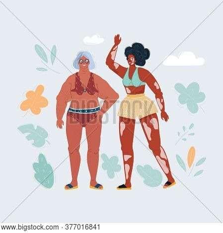 Vector Illustration Of Body Positive Anti Ageism, Curvy Elderly Woman And Vitiligo Girl On White Bac
