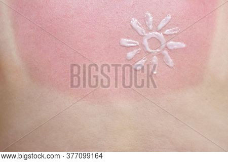 Sunscreen On The Red Skin Of The Back Of A Girl With A Sunburn