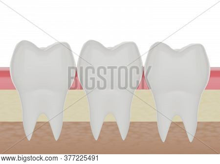 Three Clean Molar Teeth In The Gum, 3d Render