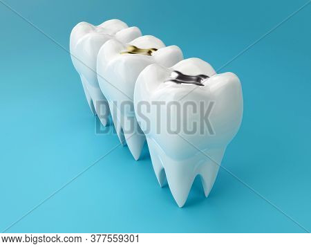 Teeth With Gold, Amalgam And Composite Inlay Dental Filling, Perspective View. Different Types Of Fi