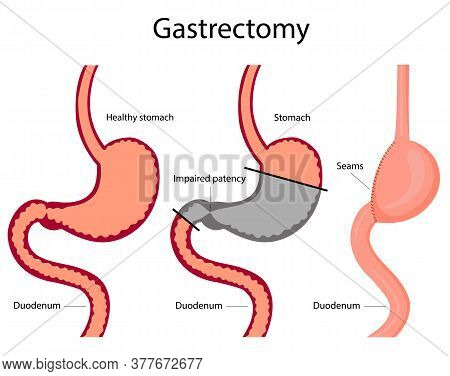 Vector Illustration Of Gastrectomy. Stomach Diseases.  Treatment Of Gastric Disease