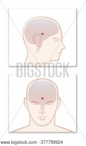 Pineal Gland. Profile And Frontal View With Location In The Human Brain. Isolated Vector Illustratio