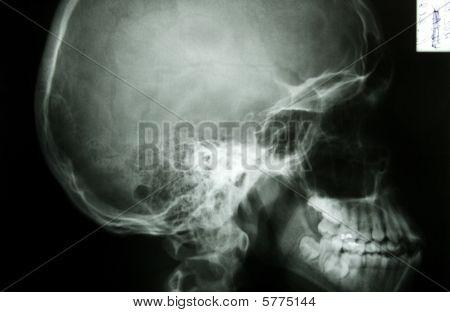 X-ray Photo Of A Human Skull