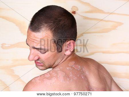 Sunburn Back In A Man