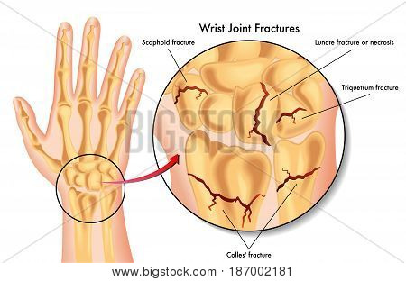 vector medical illustration of the various kinds of fracture of the wrist