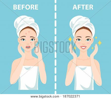 Before-After set of upset troubled and happy woman with female facial skin problems needs to care about: acne, pimples.