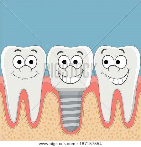 Human teeth and dental implant. Stock vector cartoon illustration.