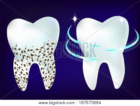 Vector set of 3d realistic clean and dirty tooth on blue background, clearing tooth process. Teeth Whitening.