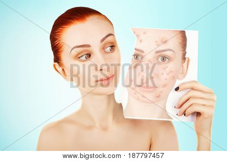 red haired woman fights with pimples portrait