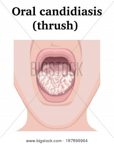 Illustration of a fungal infection - Oral candidiasis