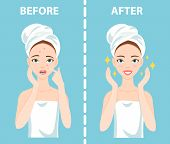 Before-After set of upset troubled and happy woman with female facial skin problems needs to care about: acne, pimples. poster