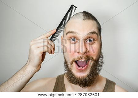 Half Trimmed Surprised Guy: On The One Hand Bald, On Other With Hair On Gray Background. Man Combing
