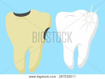 Healthy Cartoon Tooth And Decayed Tooth With. Dental Care And Hygiene Infographics. Good And Bad For