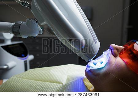 Laser Bleaching Teeth At Dantist Room. Teeth Whitening For Woman. Bleaching Of The Teeth At Dentist