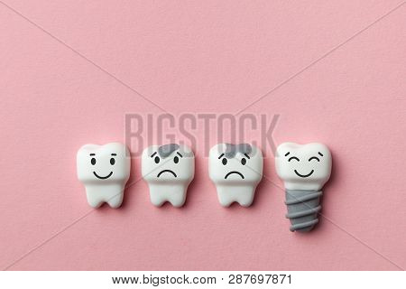 Healthy White Teeth And Implant Are Smiling And The Tooth Is Sick With Caries Sad On Pink Background