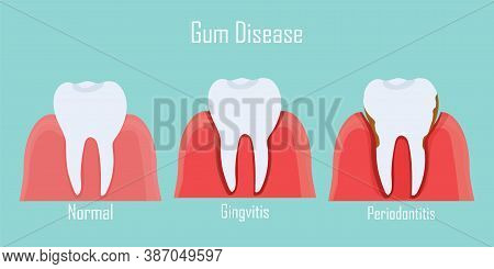 Teeth Infographic Gum Disease Stages Gingivitis And Periodontitis. Editable Vector Illustration In F