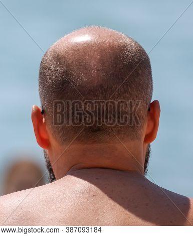A Bald Spot On A Mans Head. Disease