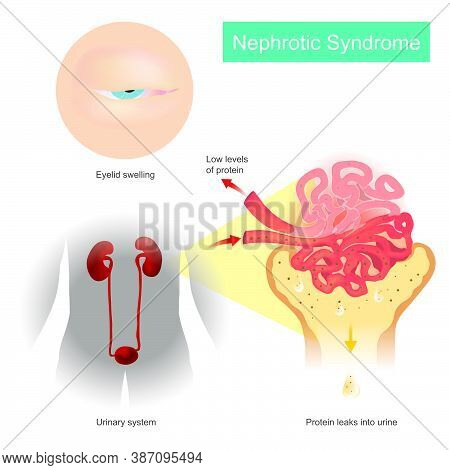 Nephrotic Syndrome. Illustration Explain A Kidney Disorder That Causes Your Body To Pass Too Much Pr