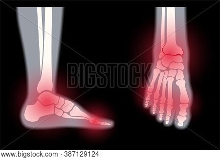 Arthritis Foot Joint In Front And Side View. Rheumatoid Arthritis. Pain In Leg. Human Bone Anatomy F