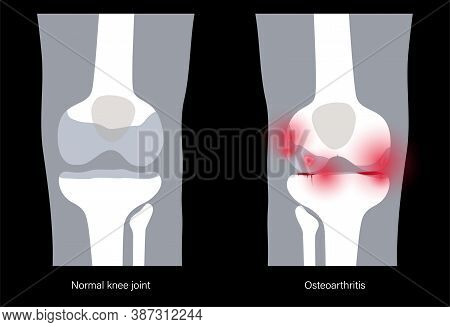X Ray Of Normal Knee And Pain In Arthritic Joint. Osteoarthritis Disease. Human Leg Bone Anatomy. Sk
