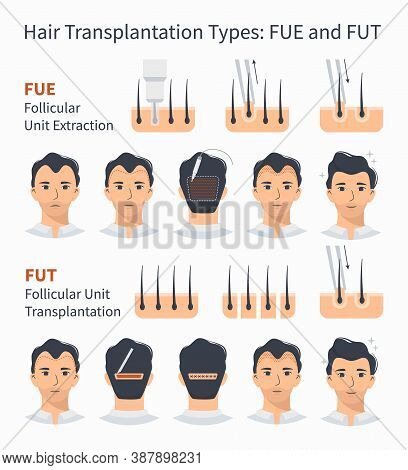 Types And Stages Of Hair Transplantation Fue And Fut Follicular Unit Extraction. Treatment Of Baldne