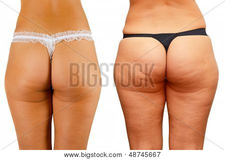 cellulite skin at woman buttocks