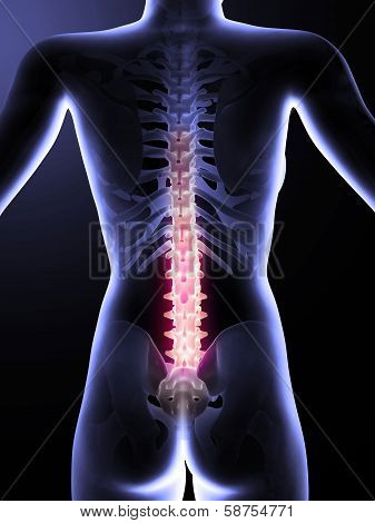 3d rendered anatomy illustration of painful back