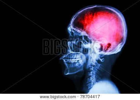 """X-ray skull & cervical spine (lateral) with """"Stroke"""" poster"""