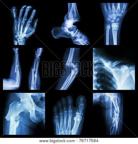 Collection Of Bone Fracture