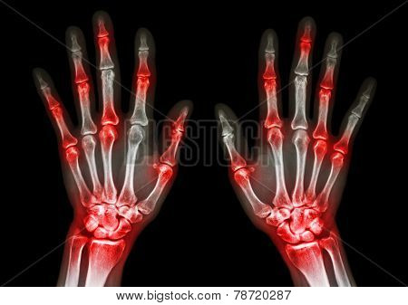 film x-ray both human's hands and arthritis at multiple joint ( Gout , Rheumatoid ) poster