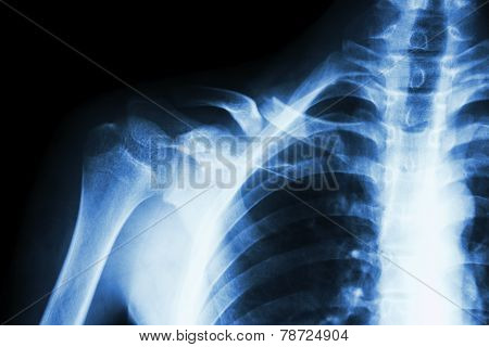 Fracture Right Clavicle