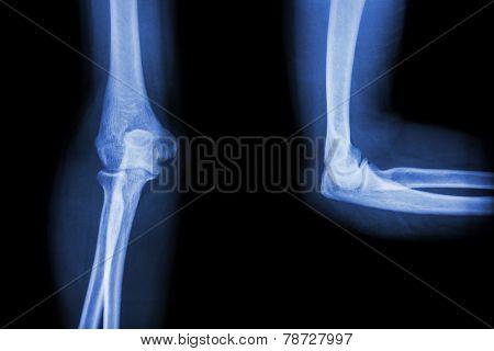 Film X - ray elbow AP(Antero-posterior) / lateral poster