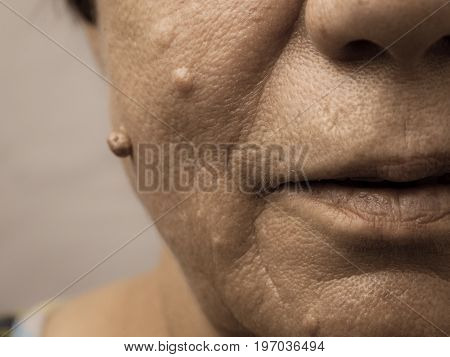 Details of senior woman face. Elderly pensioner female dermal fibroma close up.